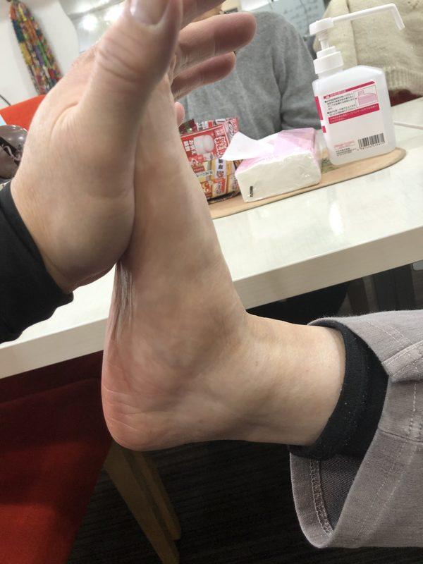 巻き爪と足関節の可動域制限