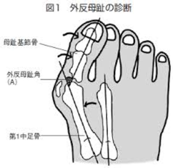最新特許による巻き爪補正
