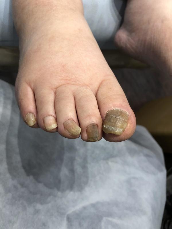 高齢者の爪