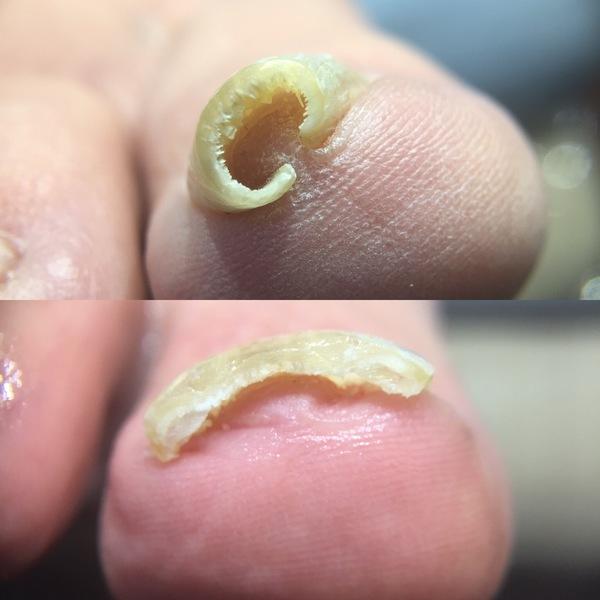巻き爪障害と巻き爪状態