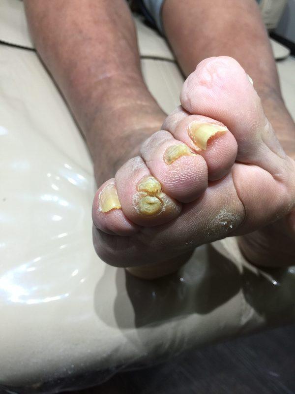 高齢者の足