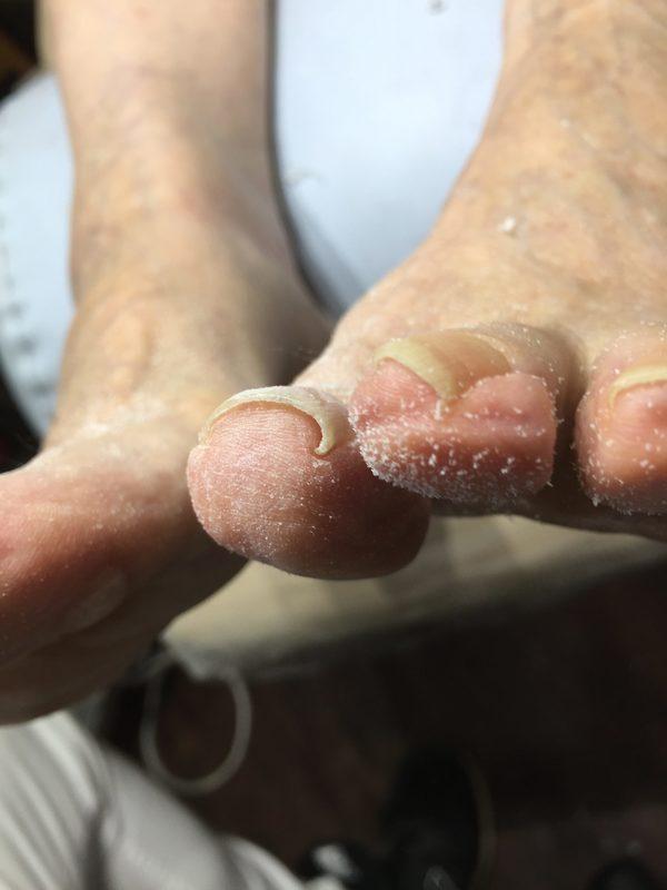 ネイルサロン、整骨院で活かせる巻き爪の施術