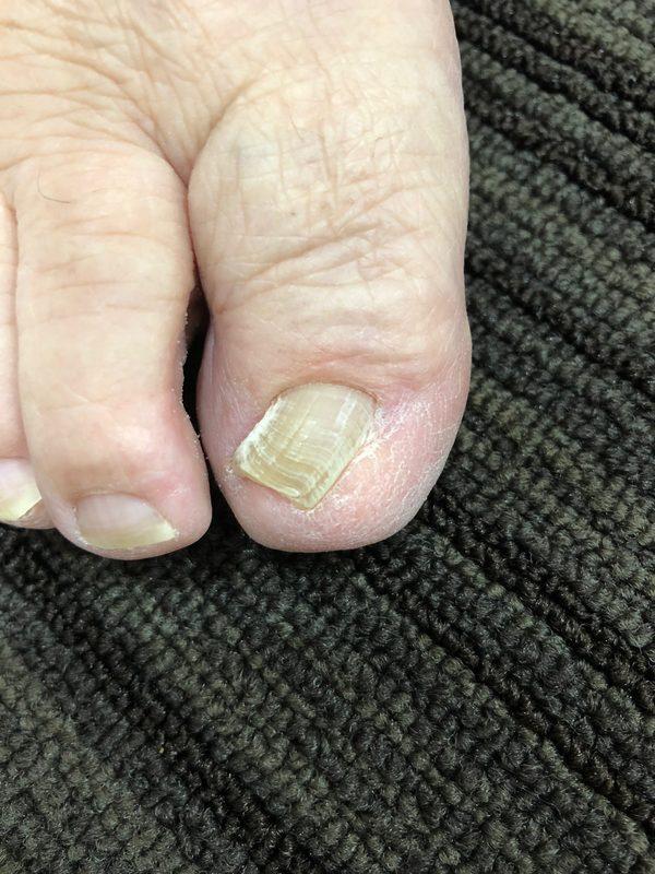巻き爪と手術のその後