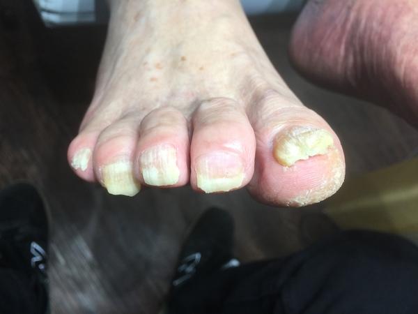 高齢者の爪切り、変形+肥厚