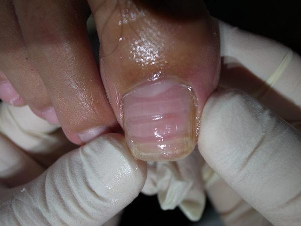 切らない巻き爪の施術方法