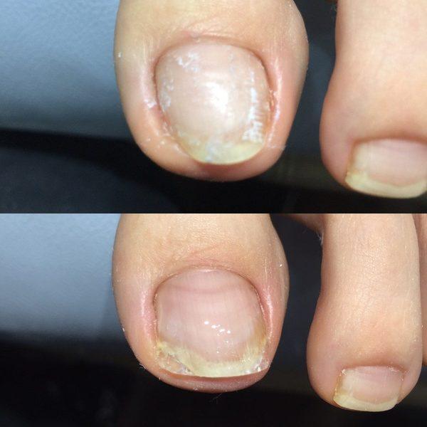 綺麗な爪のかたち